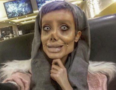 Chce wyglądać jak Angelina Jolie. Zrobiła ponad 50 operacji plastycznych?