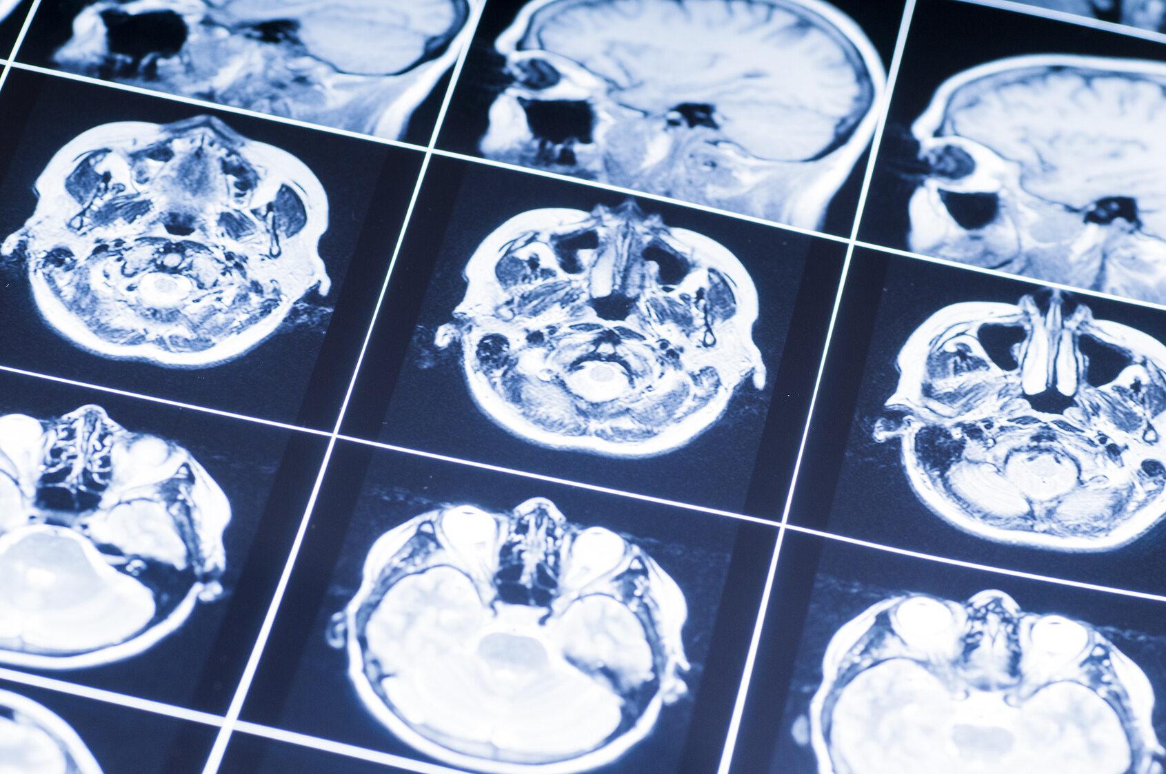 Która część mózgu kontroluje ruch?