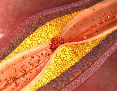 Nowe rekomendacje: Osoby o wysokim poziomie cholesterolu powinny...