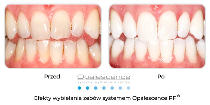 Wybielanie zębów Opalescence