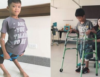 """11-latek przeszedł operację, która zmieni jego życie. """"To cud, że mógł..."""