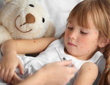 Ospa: objawy i leczenie ospy wietrznej. Czy krosty zostawiają ślady?