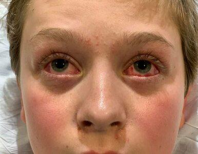 Czerwone oczy i dłonie, sine stopy – skutki COVID-19 u 11-latka