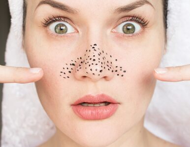 Zaskórniki, czyli nieestetyczne czarne kropki na twarzy. Jak się ich...