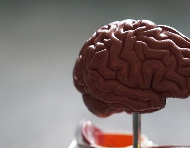 Nieznane dotąd zaburzenie mózgu dotknęło już ponad 40 osób