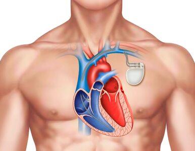 Ekspert: Nie ma leków, które mogłyby zastąpić rozrusznik serca