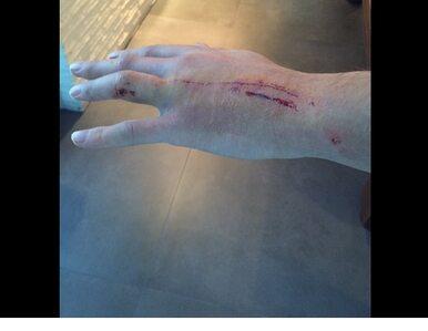 Krychowiak pokazał poturbowaną rękę. Już czeka na następny mecz