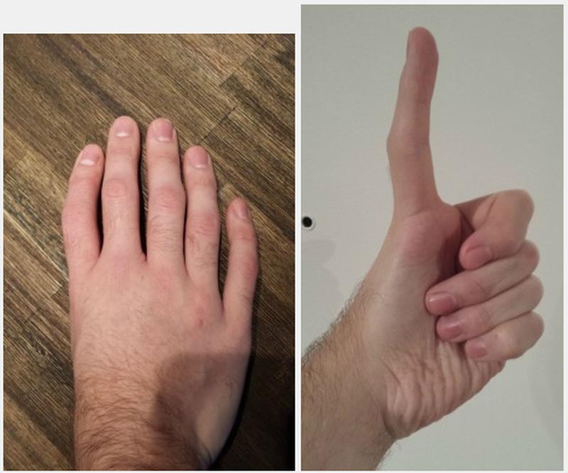 Zamiast kciuków ma zwykłe palce