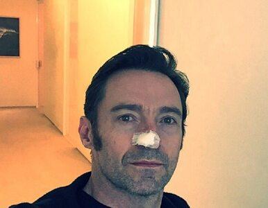 Popularny aktor znowu walczy z rakiem skóry