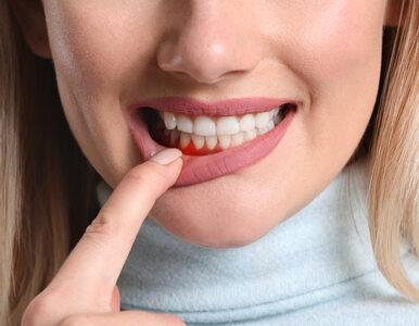 Naukowcy: Krwawienie z dziąseł może świadczyć o tym, że w twojej diecie...