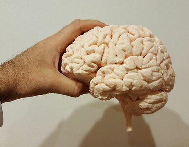 Zaskakujące odkrycie o ludzkim mózgu. Od innych ssaków nie różni nas tak...