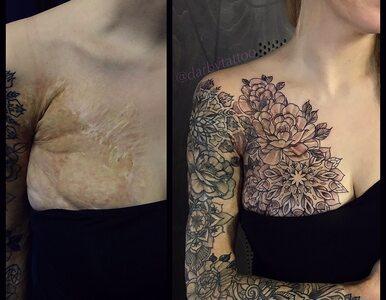Masz blizny? Możesz zatuszować je tatuażem. Przedstawiamy zestaw...