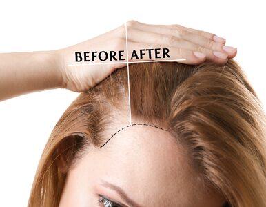 7 naturalnych olejków, które zapobiegają nadmiernemu wypadaniu włosów