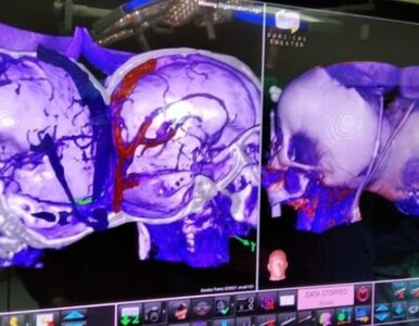 Niezwykła operacja w Izraelu. Roczne bliźniaczki syjamskie zostały...
