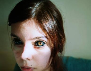 Dziewczyna z wytatuowanymi oczami walczy o zdrowie. Jej partner prosi o...