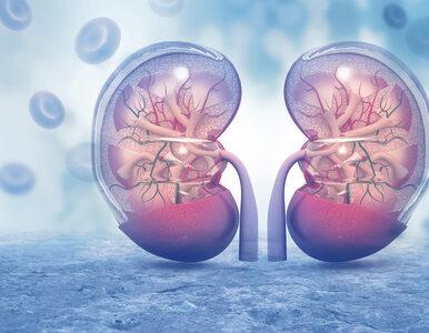 Ekspert: Choroby nerek i dializoterapia wymagają większej izolacji chorych