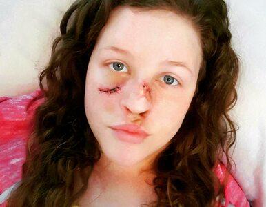 """Z powodu raka przeszła 49 operacji. """"Nie mogłam rozpoznać własnej twarzy"""""""