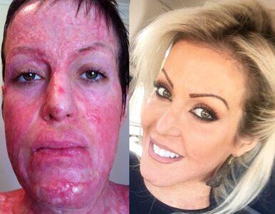 Zazdrosna koleżanka chciała spalić ją żywcem. Przeszła 200 operacji i...