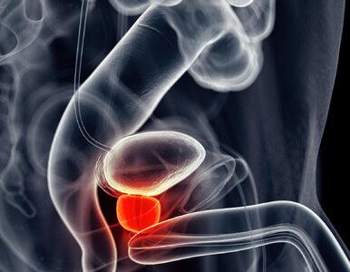 7 (mało znanych) faktów. Ten rak najczęściej atakuje mężczyzn w Polsce....