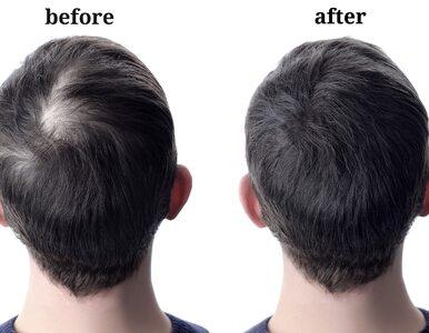 Czy warto wydawać tysiące, by zagęścić włosy? Przegląd metod i ich...