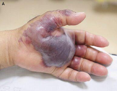 71-latek zjadł sushi. Lekarze musieli amputować mu rękę