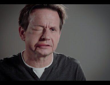 """Bartłomiej Topa pokazał opuchniętą twarz. """"Było to ekstremalne wyzwanie"""""""