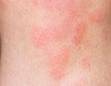 Koronawirus wywołuje także objawy dermatologiczne. Oto najczęstsze...
