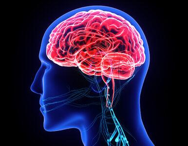 W Polsce co 6,5 minuty ktoś doznaje udaru mózgu. 5 czynników, które...
