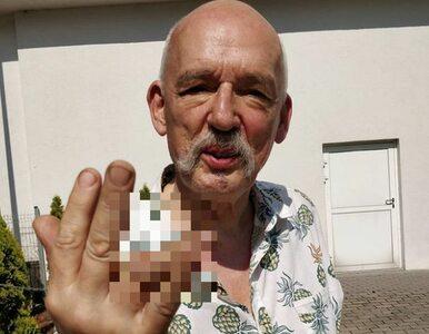 Janusz Korwin-Mikke zaliczył bolesną kontuzję. Pokazał drastyczne zdjęcia