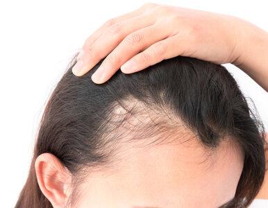 Nowa metoda walki z łysiną. Jest tańsza, niż przeszczep włosów
