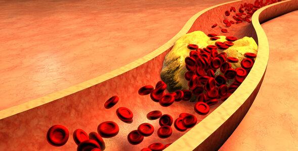 Cholesterol wciąż powoduje problemy. Sprawdź, ile o nim wiesz!