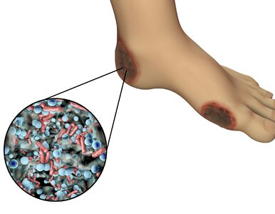 Gangrena – choroba obumierających tkanek. Jak ją szybko wykryć?