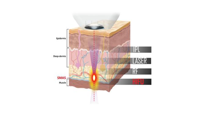 Zabieg HIFU polega nakontrolowanym urazie tkanek przez fale wysokiej częstotliwości. Touruchamia proces regeneracji inaprawy skóry, która odzyskuje jędrność istaje się bardziej napięta