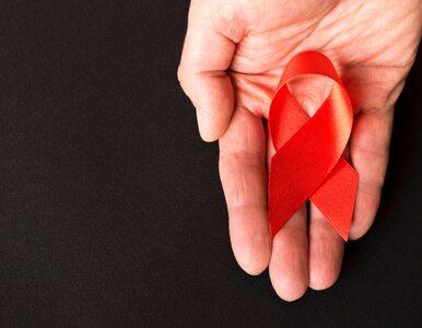 Prof. Krzysztof Simon dla Wprost o HIV: Koniecznie trzeba się testować