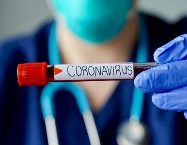 Już ponad 300 ofiar koronawirusa w Polsce. Zmarł m.in. 46-latek