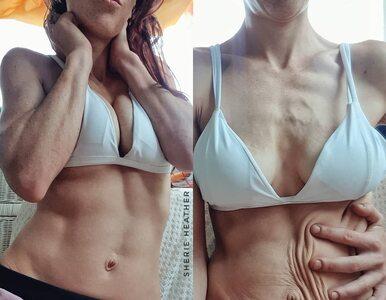 Rozstępy i obwisła skóra. Mama 3 dzieci pokazuje, jak wygląda jej ciało...