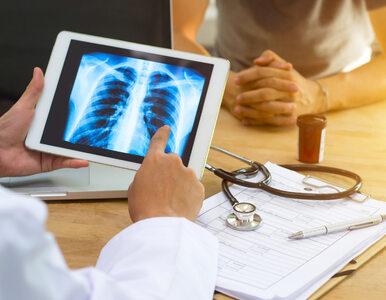 Rak płuc – objawy, które łatwo zignorować