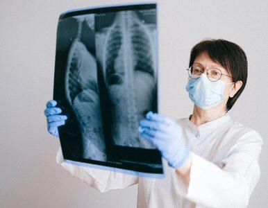 Pacjenci z drobnokomórkowym rakiem płuca mają szansę na dłuższe życie