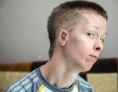 """""""Moje ucho po prostu gnije"""". 23-latek zbiera na kosztowną operację,..."""