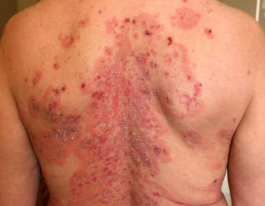 Pęcherzyca – przewlekła choroba skóry, mylona często z alergią. Jak ją...