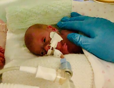 Ta dziewczynka urodziła się 13 tygodni wcześniej i przeżyła dzięki......