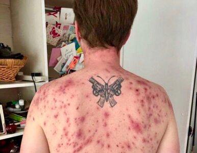 """Zachorował po ataku pasożytniczego robaka. Pokazał zdjęcie """"ku przestrodze"""""""