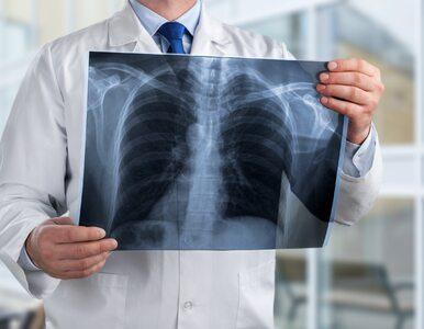 Nowy lek na zwłóknienie płuc? Stoi za nim polska firma