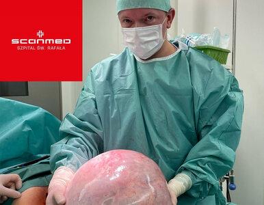 Niezwykła operacja w Krakowie. Lekarze usunęli 15-kilogramowy guz
