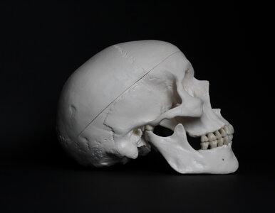 Czy współcześnie wykonuje się zabieg trepanacji czaszki?