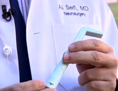 Jak się pozbyć uporczywej czkawki? Neurochirurdzy stworzyli genialny...