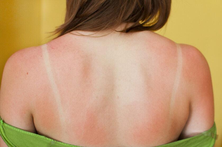Poparzenie słoneczne