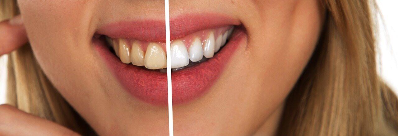 Każdy z nas mógłby mieć białe zęby, gdyby o nie dbał