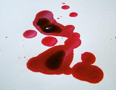 Unia Europejska ma dowody, że zlecano zabójstwa Serbów, by sprzedawać...