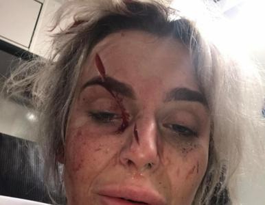 Kobieta została zaatakowana przez dwóch mężczyzn maczetą? Opublikowała...
